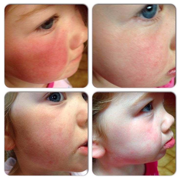My daughter had a bad reaction to sunscreen. After using serum and moisturiser for 3 days it had nearly cleared up. Her skin is a sensitive and she suffers from Eczema . What great products !