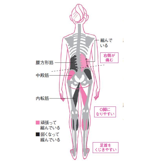 「いつも片側だけ腰が痛い」とか、「ぐいっとひねると腰にずーんと響く」といった慢性腰痛には、体の「左右差」が関わっています。腰骨の高さが違う、横座りが片方だけうまくできない……。思いあたるあなたは、今回の体操がしっかり効くタイプ! 左右差に…