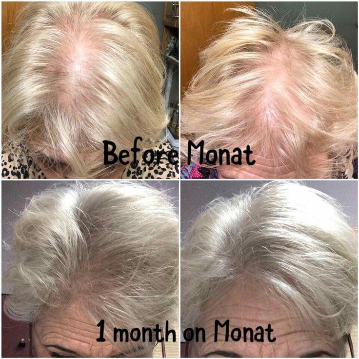 Amazing Monat Results Monat Hair Monat Hair Growth