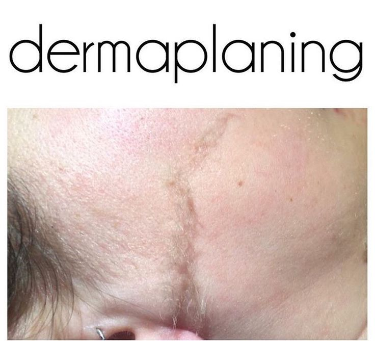On the left : dead skin and vellus hair give the appearance of dullness to the skin .  In the middle : a combination of dead skin and vellus hair being removed. On the right : a new layer of skin that is smoother and brighter !  Dermaplaning can be combined with chemical peels or enzymes for added exfoliation and penetration of products #dermaplaning #bkspa#brooklynspa #bkfacial #brooklynfacials #exfoliation #chemicalpeels #smoothskin #healthyskin #esthetician #skintherapist