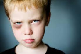 Google Image Result for http://www.pehub.com/wp-content/uploads/black-eye_boy_istock_8851542xsmall.jpg