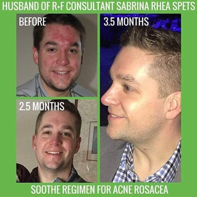 Rodan and Fields Soothe Regimen for rosacea and redness