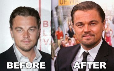 Leonardo DiCaprio Plastic Surgery Before And After – www.panissue.com/… – #DiC…
