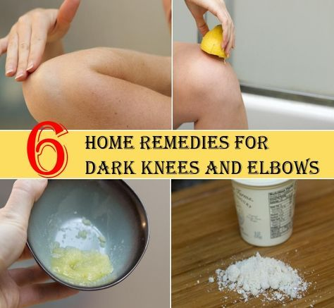 6 Home Remedies For Dark Knees And Elbows