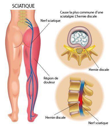 Qu'est-ce que la sténose spinale? La sténose spinale est décrite par le rétrécissement d'une partie de la colonne vertébrale par laquelle passe la moelle …