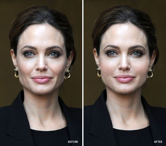 If you've lost volume with age, like #celebrity #Angelina #Jolie, you may want to consider facial implants to return facial youth.