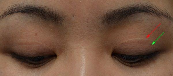 upper eyelid surgery cost uk upper eyelid surgery cost uk