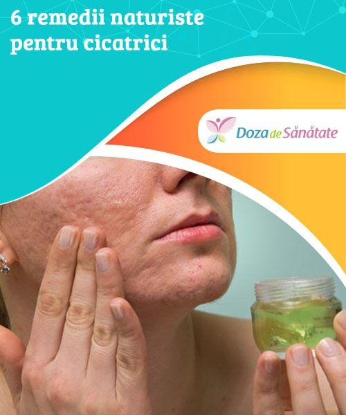 6 remedii naturiste pentru cicatrici  Reține că următoarele tratamente sunt 100% naturale, drept pentru care rezultatele dorite nu vor apărea după prima aplicare. Însă cu ajutorul acestor remedii pielea ta se va regenera și vei scăpa de cicatrici. Nu ezita să le încerci!
