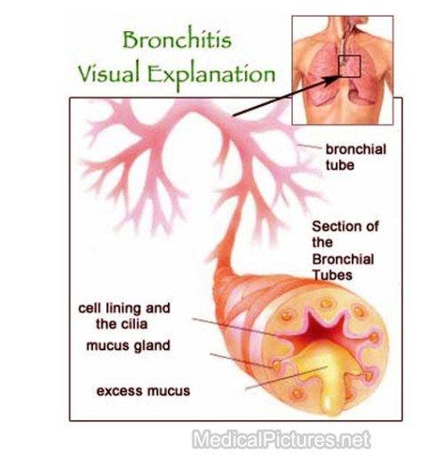 Treat Acute Bronchitis Naturally