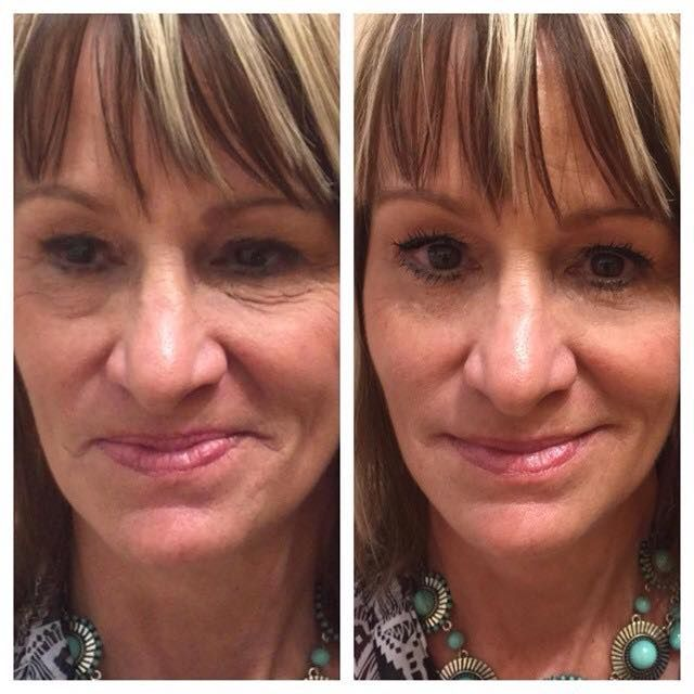 Wow AMAZING results!! So exciting to see Instantly Ageless working like MAGIC. http://2minuteskinmiracle.com/CP1/?u=871