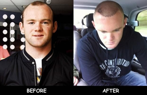 Wayne Rooney Celebrity Hair Transplant Before And After