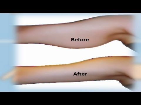 Best 25+ Lose arm fat ideas on Pinterest | How to lose arm ...