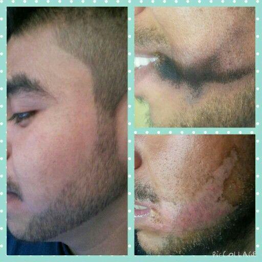 Estos son resultados de NERIUM OPTIMERA visitame www.tigre74.nerium.com.mx