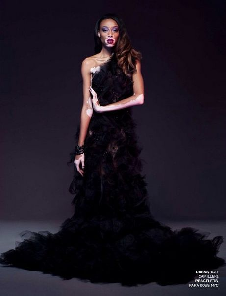 Winnie Harlow - Nord Magazine - the Fashion Spot