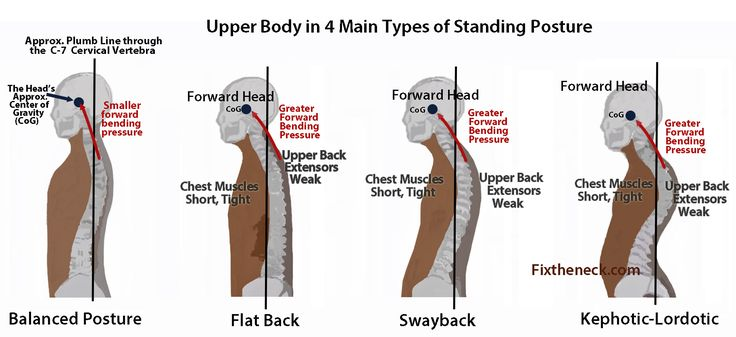 Overcoming Chronic Neck Pain: Postural Causes and A Unique Exercise Fix Probably the best pin i've come across with all the upper back/shoulder tightness ive had latey!