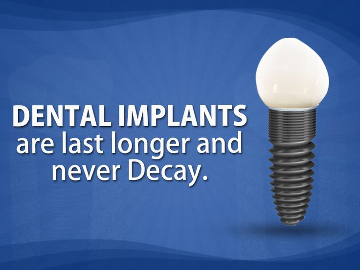 Did you know more than nine out of ten dental implants