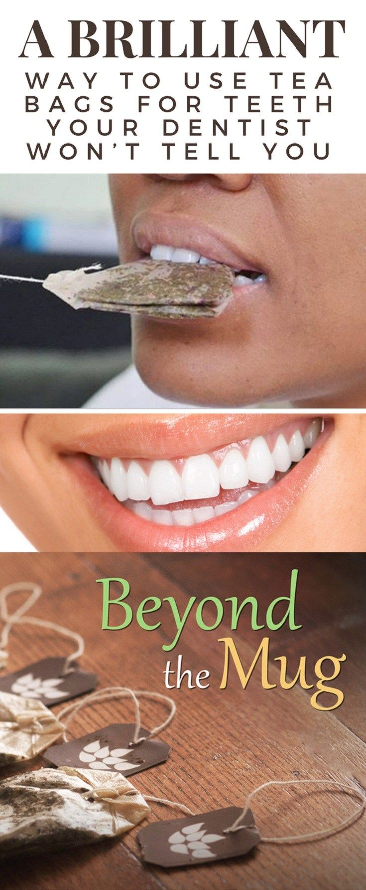A BRILLIANT WAY TO USE TEA BAGS FOR TEETH YOUR DENTIST WON'T TELL YOU #teeth #health #beauty #tea