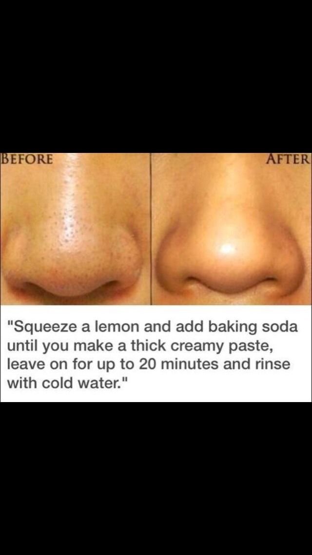 Skin Tips #Beauty #Trusper #Tip