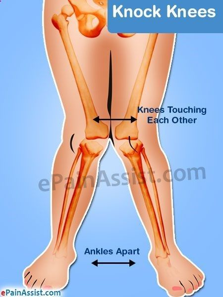 Bow Legs Correction-Exercise - Knock knees, medically termed as Genu Valgum, is a bony deformity, in which the knees, touch each other when standing, while the ankles are apart. Know its causes, symptoms, ways to fix knocked knee with the help of corrective exercises, brace and surgery. - Looking for a Permanent Remedy for Bow Legs - Without the Need for Surgery? Read on to discover exactly what you need to do to fix your bow legs once and for all, and enjoy perfectly straight and attr...