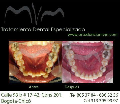 Alineacion dental con brackets linguales. #ortodoncia #bracketslinguales #lingualbraces #2dlingual #estetica #sonrisa #salud #belleza #glamour #moda