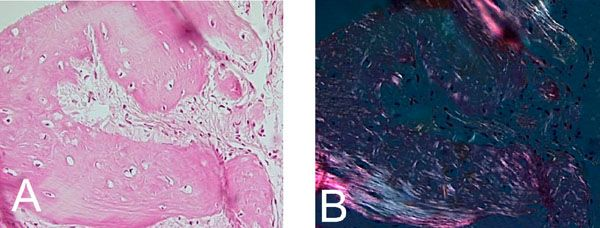 Case Presentation of Concomitant and Contiguous Adenomatoid Odontogenic Tumor and Focal Cemento-Ossifying Dysplasia ~ Fulltext