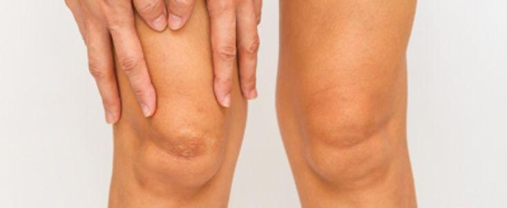 El dolor de tipo punzante en la parte lateral de la rodilla (por fuera), es una de las lesiones principales en los corredores.
