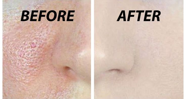 Do the following 3-step protocol for 3 days and see what happens to your skin… Step 1: Apple Cider Vinegar Skin Toner Ingredients: 5 tablespoons organic ...