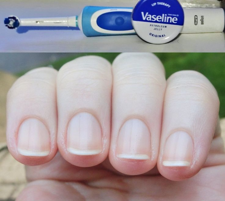 Listen up everyone! This is magic! I've started regularly massaging my nails with an worn out electric toothbrush and vaseline. My cuticles have NEVER been better. Magic, I tell you! :D