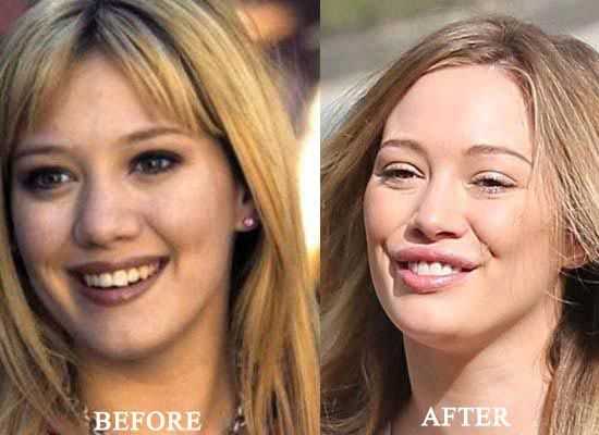 Hilary Duff Plastic Surgery Before And After! - http://plasticsurgerytalks.com/hilary-duff-plastic-surgery/