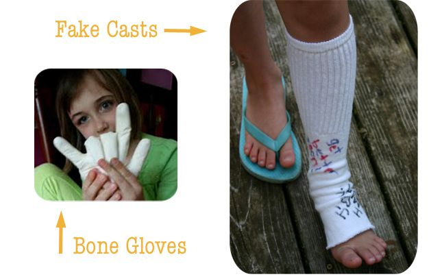 fake casts for 'doctor' play . . . the kids loved this stuff!