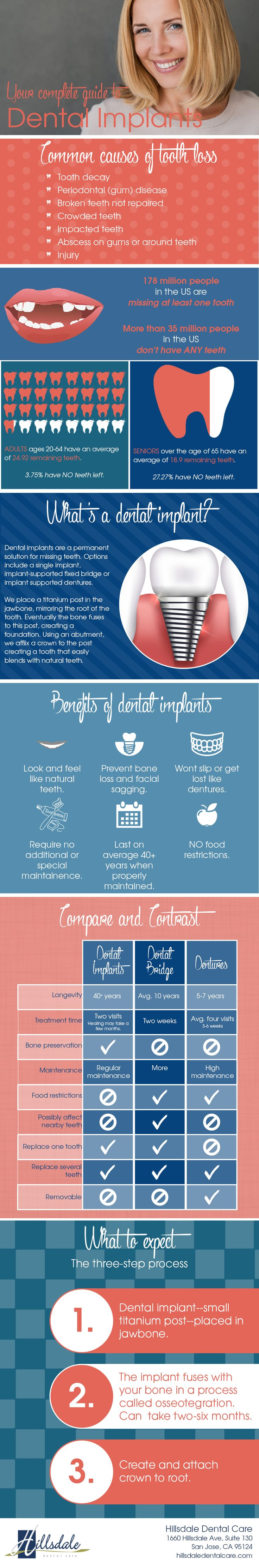A complete guide to dental implants. an infographic.