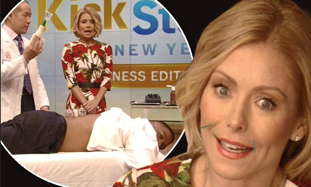 Kelly Ripa and Michael Strahan get acupuncture treatments on talk show