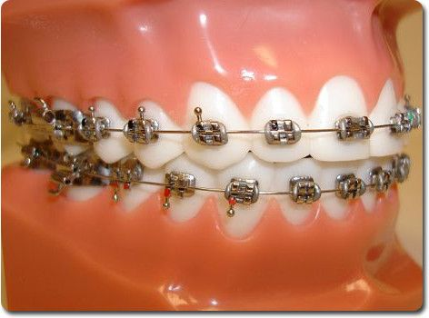 Grey/silver braces bands