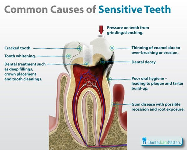 Having tooth sensitivity and don't know why? This article gives a number of possible culprits. In any case, a trip to Dr. Dave may be the best response to tooth pain.