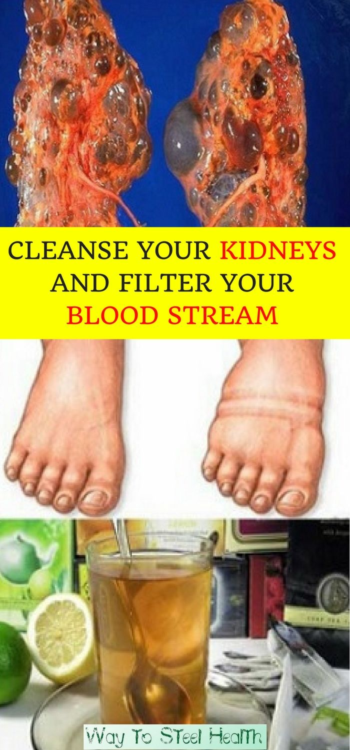 THESE 4 DRINKS WILL CLEANSE YOUR KIDNEYS AND FILTER YOUR BLOOD STREAM. HERE'S HOW TO MAKE THEM