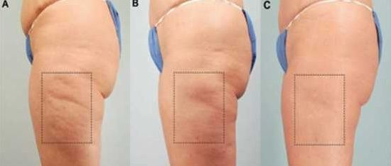 Skin brushing for cellulite - no more expensive, ineffective creams and lotions. This is so easy, cheap, and it REALLY WORKS!! #cellulite #celluliteremoval #cellulitecure