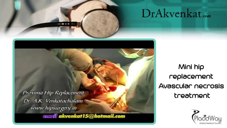 Mini #Hip Replacement   Avascular Necrosis Treatment in #India