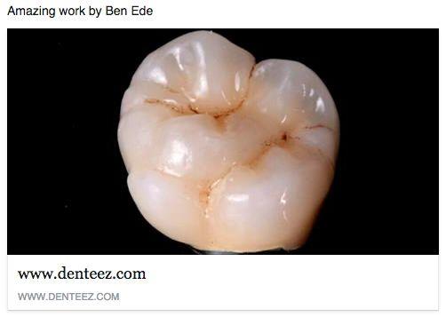 Ben Ede DTG See more on www.denteez.com #Dentistry #Professional #Networking #Denteez