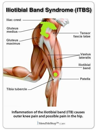 My areas of pain with ITBS. I'm almost always hurting in the hip area and only intermittently in the knee area. Green indicates the areas of pain. I start PT tomorrow 11/15/11.