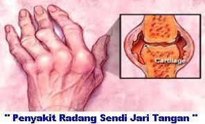 Obat Penyakit Radang Sendi Jari Tangan | Obat Penyakit Radang Sendi Jari Tangan | Obat Penyakit Radang Sendi Jari Tangan | Obat Penyakit Radang Sendi Jari Tangan | Obat Penyakit Radang Sendi Jari Tangan.