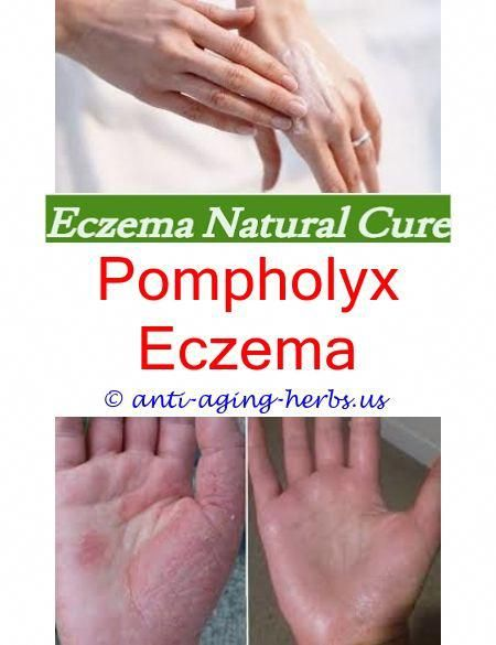Can Food Allergies Cause Eczema In Adults Dyshidrotic Eczema Or Dyshidrosis Pau D Arco Eczema Eczema Cure  Mild Eczema On Face Treatment