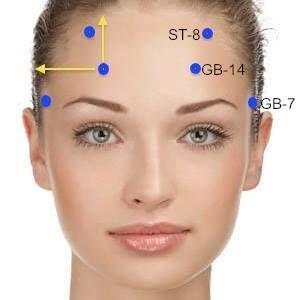 Öngyógyítás - Az arc 3 akupunktúrás pontjának kezelése