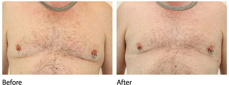 Before and After / LipoLift / Abs, Flanks, and Pecs – M.D. – #Abs #flanks #LIPOL…