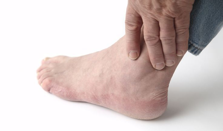 Also called gouty arthritis gout is a painful form of arthritis caused by