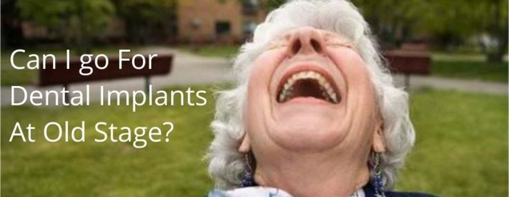 CAN I CHOOSE TO HAVE IMPLANTS AT OLD AGE?