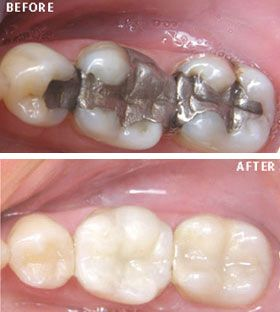 Visit Dental Clinic For Teeth Whitening Or Dental Implants Tooth Coloured Filling Is Used To Repair A Tooth That Is