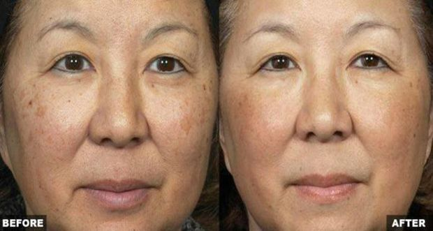 Hyperpigmentation, which is a very common benign skin matter among numerous of male and female individuals of every race, appears on the skin as a patch that is darker in color than the surrounding skin. The darkening happens when a lot of melanin forms deposits in the skin. (Melanin is the brown pigment that makes …