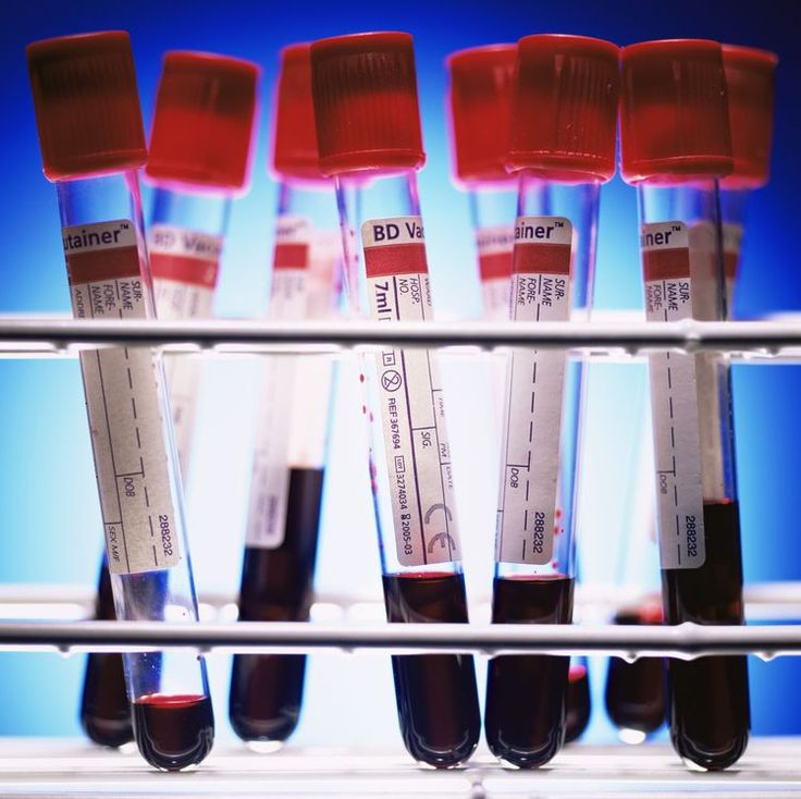 Understanding Thyroid Function Test Levels and Lab Values