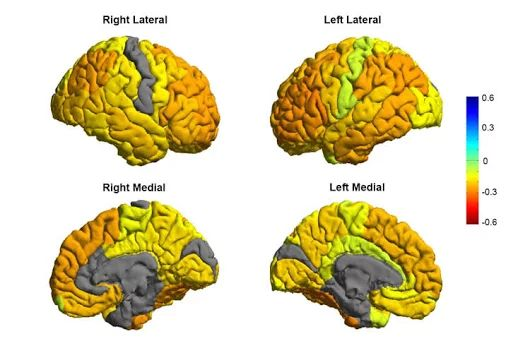 Researchers Create a Roadmap of Bipolar Disorder and How It Affects the Brain...