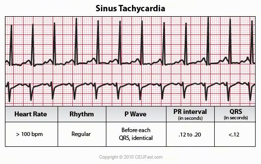 ECG Interpretation - 17 Sinus Tachycardia with pictures & what to expect with P waves, PR intervals with each arrhythmia